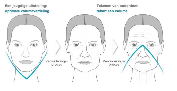 gezichtsspieren trainen apparaat